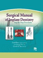 Surgical Manual of Implant Dentistry: Step-By-Step Procedures