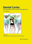 Dental Caries: The Disease and Its Clinical Management - 3rd Ed. (2015)