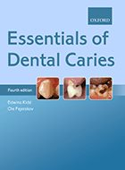 Essentials of Dental Caries - 4th Ed. (2016)