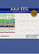 Adult EEG: An Interactive Reading Session - 2nd Ed. (2013)