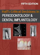 Critical Decisions in Periodontology and Dental Implantology, Hall's - 5th Ed. (2013) (LoE)
